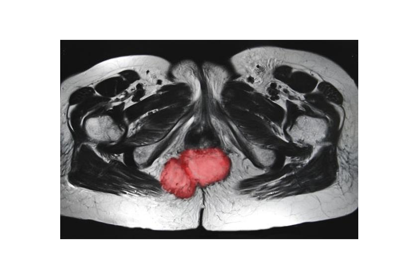 Диагностика рака анального канала