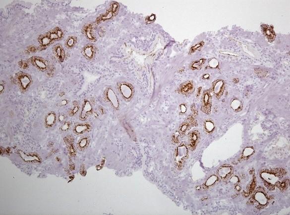 Фокус ацинарной аденокарциномы простаты Глисон 3+3 Окраска ИГХ AMACR
