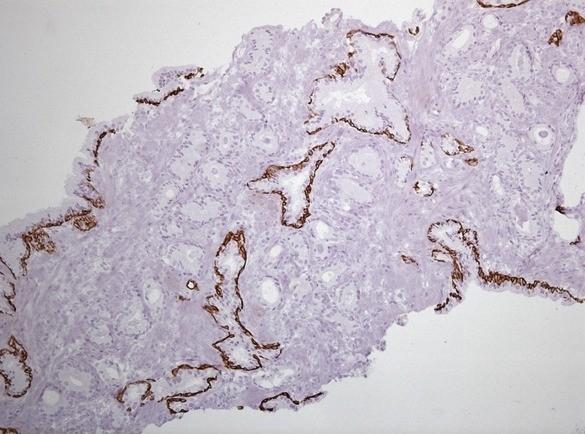 Фокус ацинарной аденокарциномы простаты Глисон 3+3. Окраска ИГХ Cytokeratin HMW