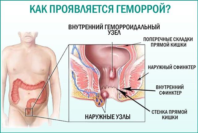 Геморрой и простатит (одновременно): лечение (эффективные свечи, мазь), миостимулятор, упражнения