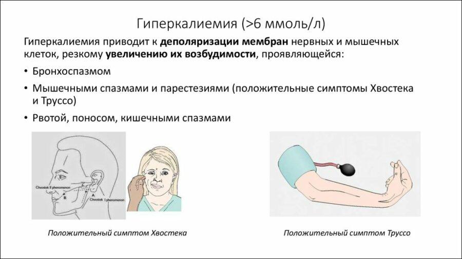гиперкалиемия причины и симптомы