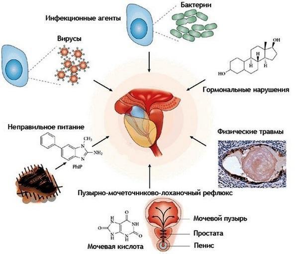 Грибковый простатит: пути заражения, симптомы и лечение