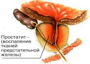 http://medcenter-angarsk.ru/wp-content/uploads/2018/01/%D0%BF%D1%80%D0%BE%D1%81%D1%82%D0%B0%D1%82%D0%B8%D1%82-300x213.jpg