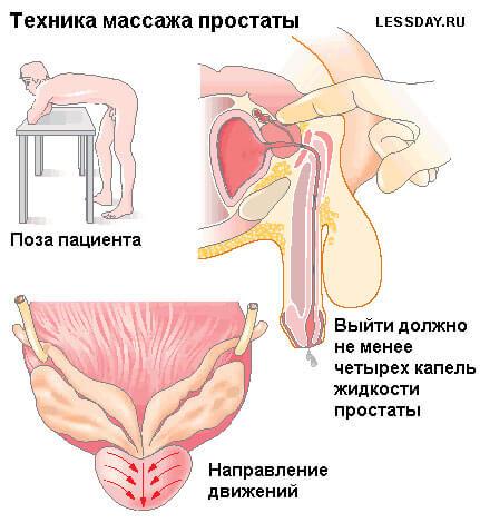 https://i0.wp.com/aizdorov.ru/images/kaknaytiprostatuvdomashnixusloviyax_10B08ED2.jpg
