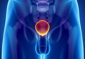 https://i0.wp.com/venerologia03.ru/wp-content/uploads/2017/09/Disfunkcija-prostaty-300x207.jpg