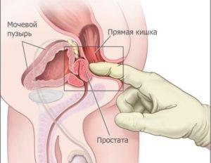 https://i1.wp.com/aizdorov.ru/images/gdenaxoditsyaprostataumuzhchinikakeenayt_A66D1CC3.jpg