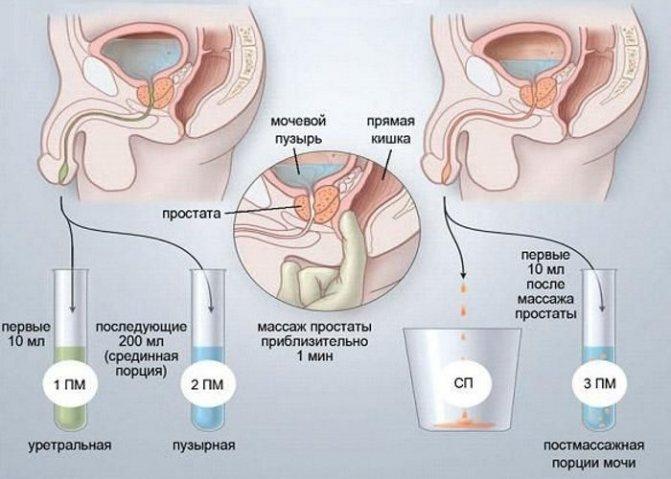 https://ityarn.ru/wp-content/uploads/analiz-sekreta-prostata2.jpg