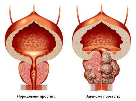 https://naranfito.ru/images/news/adenoma2.jpg