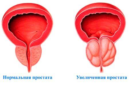 https://naranfito.ru/images/news/prostatit.jpg