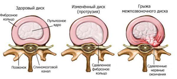 https://prostatit-doc.ru/wp-content/uploads/2018/09/Razvitie-mezhpozvonochnoj-gryzhi-600x270.jpg