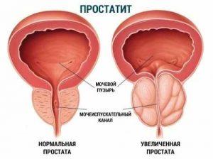 https://sc-master.ru/wp-content/uploads/lekarstvo-ot-prostatita-bystrodejstvuyucshee-nedorogie-cena_0.jpg
