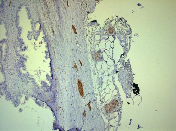 Нервные волокна в парапростатической ткани и капсуле простаты ИГХ окраска S100