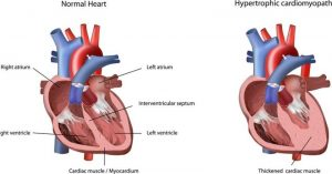 Гипертрофическая кардиомиопатия сердца