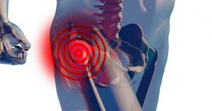 Асептический некроз головки бедра - симптомы