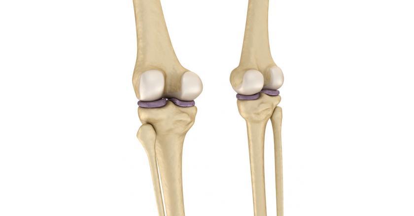 Асептический некроз медиального мыщелка большеберцовой кости - формы заболевания