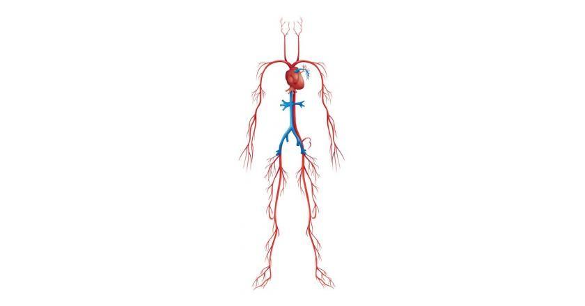 Узловой артериит