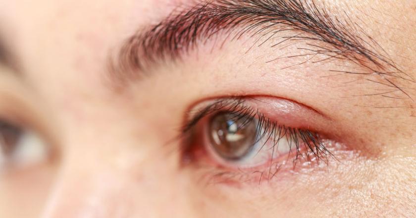 Ячмень на глазу, под глазом, в глазу