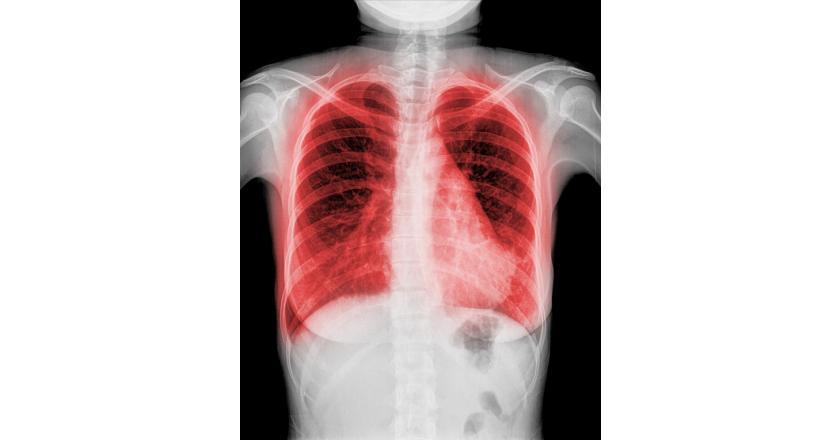 Аллергический альвеолит - причины, симптомы и лечение