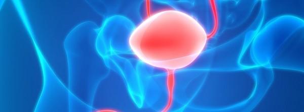 Наноустройство для лечения гиперактивного мочевого пузыря или недержания мочи
