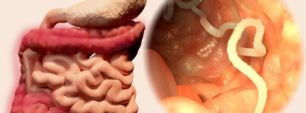 Что такое ленточный червь?