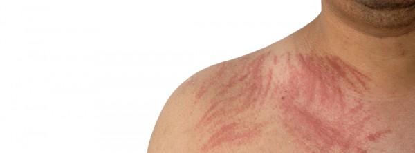 Дермографизм: воспалительный процесс на коже