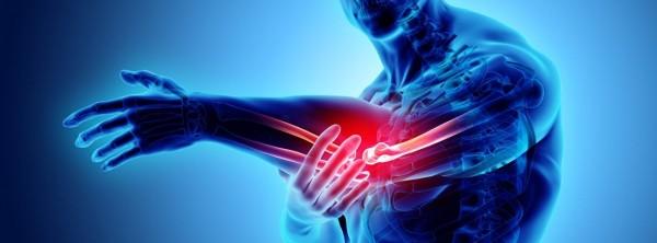 Что такое кальцификации сухожилий?