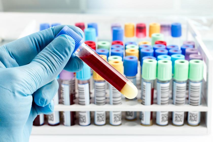 Анализ крови FT4