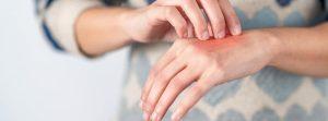 Проблемы с кожей, вызванные масками и гелями против Covid