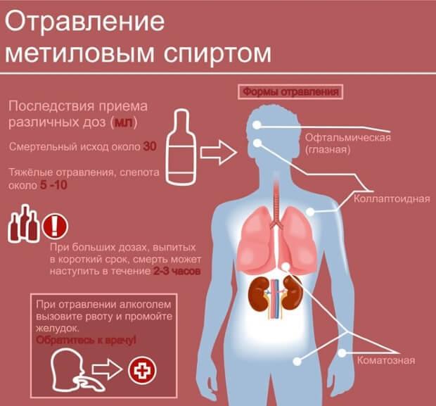 Болит голова после алкоголя: что делать в домашних условиях, как снять головную боль после алкоголя