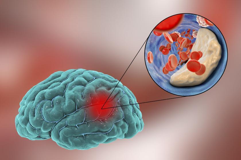 Человеческий мозг во время инсульта
