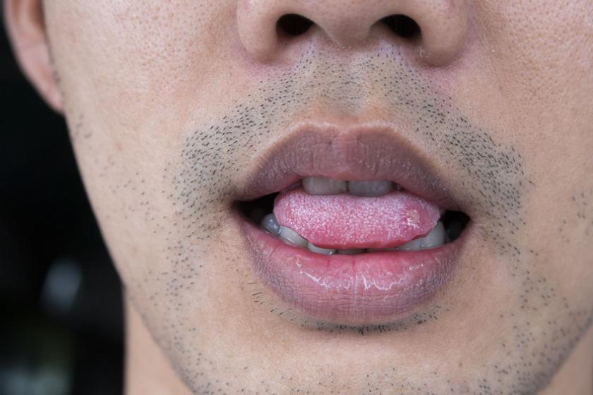 Человек с пятнами на языке