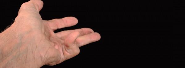 Болезнь Дюпюитрена: скованность и потеря гибкости пальцев.