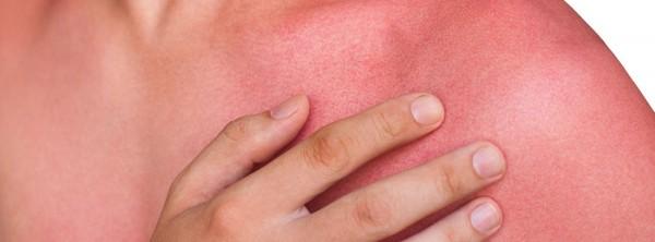 Повреждения кожи от солнечного излучения
