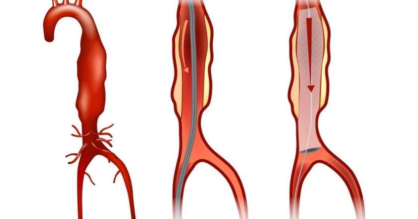 https://cdn.medme.pl/zdjecie/15174,840,440,1/tetniak-aorty-brzusznej.jpg