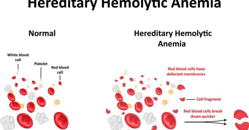 https://cdn.medme.pl/zdjecie/5501,840,440,1/Sferocytoza+wrodzona.jpg