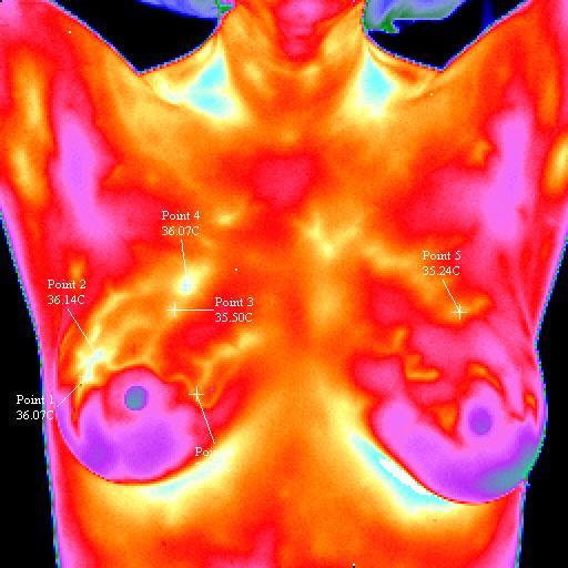 https://www.medme.pl/image/BreastCancerRightSamplel,640,0,0,0.jpg