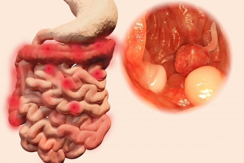 Красное воспаление толстой кишки