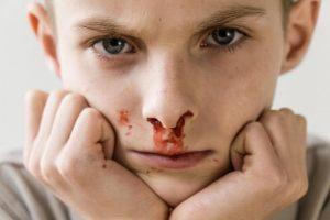 Мальчик с кровотечением из носа