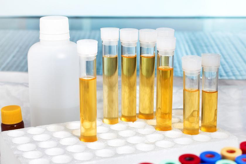 Образцы мочи для тестирования pH