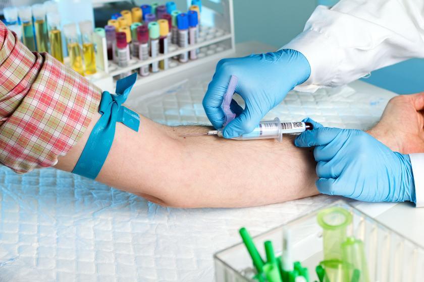 Образец крови для анализа крови СОЭ