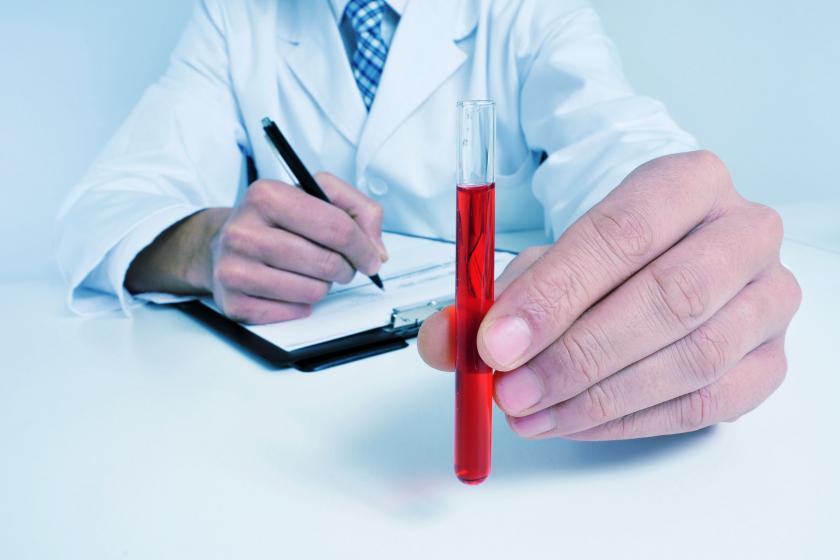 Образец крови для определения уровня СОЭ в крови
