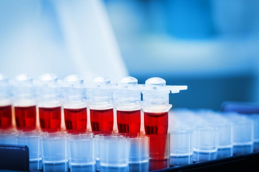 Образец крови для тестирования