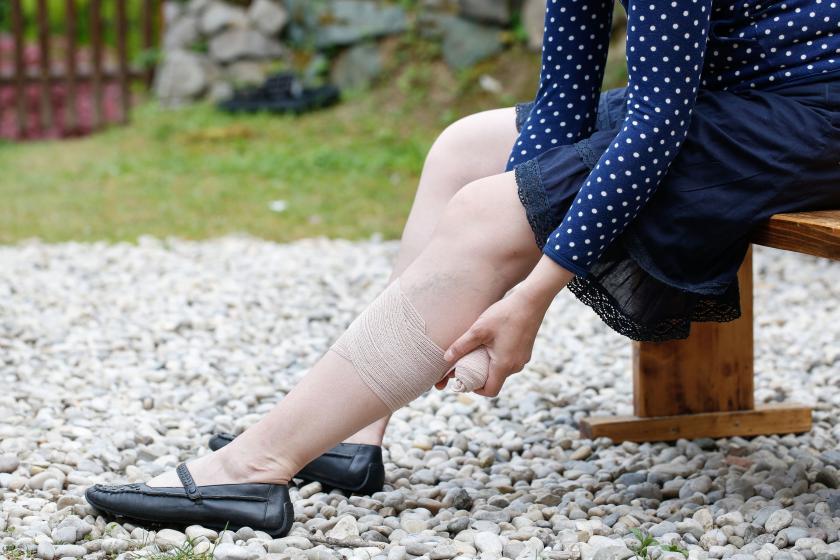 Перевязка ноги при покалывании
