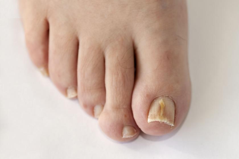 Желтые человеческие ногти