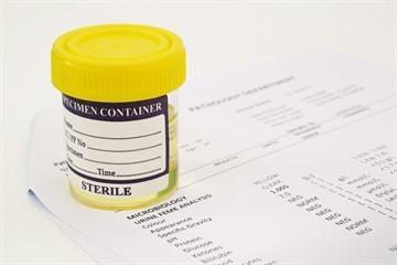 Анализ ПСА при простатите: общий, норма в крови у мужчин и как определить