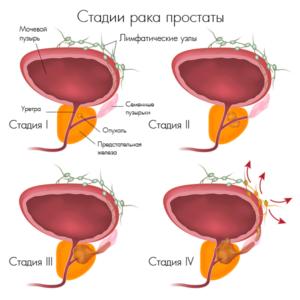 http://zdravslav.ru/wp-content/uploads/2017/12/%D1%80%D0%B0%D0%BA-%D0%BF%D0%B6-300x300.png