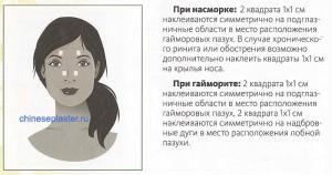 https://chineseplaster.ru/wp-content/uploads/2016/03/kuda-kleit-plasty-r-pri-nasmorke-i-gajmorite-300x158.jpg