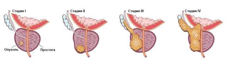 https://spizhenko.clinic/wp-content/uploads/2017/02/Stadii-raka-prostaty-720x216.jpg