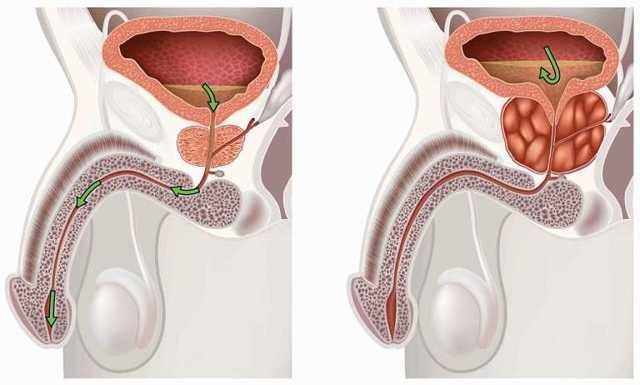 Лечение простатита перекисью водорода по Неумывакину: инструкция
