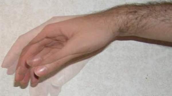 почему у алкоголиков трясутся руки